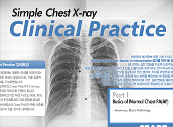 Simple Chest X-ray : Clinical Practice